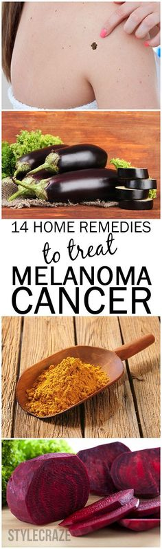 Melanoma cancer can be treated with just the ingredients in your home. Here are 14 Effective Home Remedies To Treat Melanoma Skin Cancer