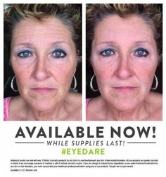 http://becausewebelieve.itworks.com/ WOW #Wednesday...thank you Adam Darcy for sharing your mom's #WOW pictures with us...this is after one 90 second application of WOW. Tell the whole wide world about WOW...#ItWorks #eyedare #WipeOutWrinkles