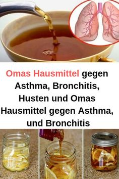 Grandma's home remedy for asthma, bronchitis, cough and grandma's home remedy for asthma … - Detox Drinks Home Remedies For Asthma, Natural Acne Remedies, Detox Drinks, Healthy Drinks, Healthy Tips, Health And Nutrition, Health Fitness, Health Cleanse, Health Articles