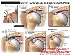 amicus,surgery,arthroscopy,debridement,portal,shoulder,clavicle,scapula,humerus,supraspinatus,debrided,acromion,labrum,repair,bursectomy,acromioplasty,anchors