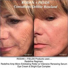 Only THREE WEEKS on our new AMP roller and INTENSIVE RETINAL Serum and look at the  visual improvement already!   Gift your skin the best skincare out there...products that actually deliver visual progress!