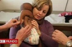 Salvan la vida a una #bebé al extirparle a su gemelo parasitario de la espalda