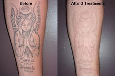 about Tattoo Removal Before And After Pictures on Pinterest | Tattoo ...