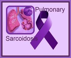 Immune System and the Disease Sarcoidosis Essay