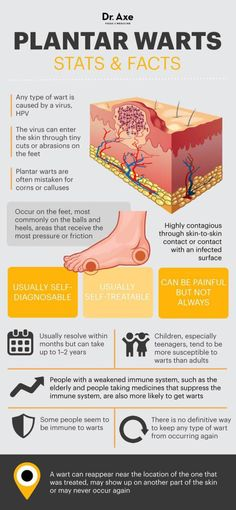 Natural Holistic Remedies - If you've had hard, grainy or fleshy growths on your foot that are irritating, you may have plantar warts. Here's how to stop them naturally. Foot Warts, Warts On Hands, Warts On Face, Get Rid Of Warts, Remove Warts, Natural Treatments, Natural Cures, Natural Health, Skin Treatments