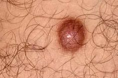 Pictures of Bumps on Skin: Cysts, Skin Tags, Lumps, and More Skin Bumps, Skin Tag, Skin Care Remedies, Skin Problems, Beauty Makeup, Tags, Health, Pictures, Photos