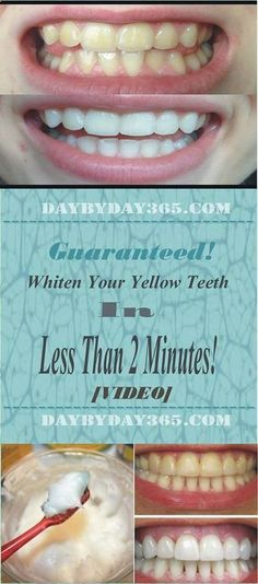 Check this great article how to whiten your theeth - [Video] Guaranteed! Whiten Your Yellow Teeth In Less Than 2 Minutes! If you liked this Article Pin IT.