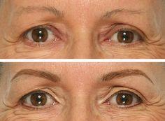 diseño de cejas con micro pigmentación antes y despues