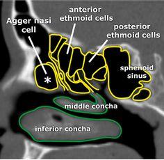 Startradiology Brain Anatomy, Medical Anatomy, Skull Anatomy, Radiology Student, Radiology Imaging, Paranasal Sinuses, Maxillary Sinus, Internal Carotid Artery, Sinus Surgery