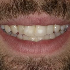 White Spot lesions removed when you have training on the Icon by DMG. Ours courses help you get the best results for your patients. Tooth Bleaching, Whitening, Teeth, Training, Tooth, Work Outs, Excercise, Onderwijs, Teeth Whitening