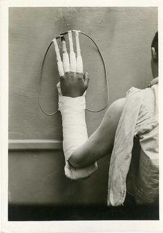 Base Hospital #33. Portsmouth, England. Hand splint