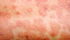 Measles in adults fake
