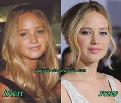And my favorite example of perfected beauty: Jennifer Lawrence
