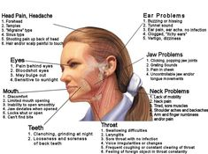 TMJ symptoms diagram: Heaches migraine sinus shooting pain scalp pain ear problems hissing uzzing ringing decreasing hearing ear p. Tmj Headache, Headache Relief, Neck Pain Relief, Tendinitis, Jaw Pain, Natural Teeth Whitening, Chiropractic Care, Migraine, Massage Therapy