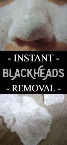 DIY Beauty Hacks - Instant Blackheads Removal - Cool Tips for Makeup, Hair and Nails - Step by Step Tutorials for Fixing Broken Makeup, Eye Shadow, Mascara, Foundation - Quick Beauty Ideas for Best Looks in A Hurry http://diyjoy.com/diy-beauty-hacks