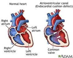 Atrioventricular canal defect increased pulmonary blood flow