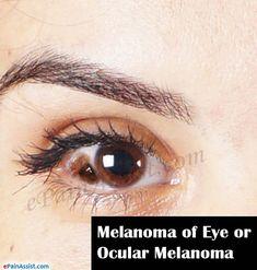 Melanoma of Eye or Ocular Melanoma Eye Pain, Types Of Cancers, Cancer Treatment, Health And Wellness, Medical, Eyes, Nursing, Life