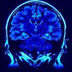 Demuestran que una proteína humana desencadena la enfermedad de Parkinson
