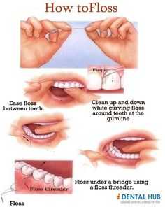 Dental Flossing... It is such a common thing but still many people do not floss their teeth correctly. Using the correct technique to floss teeth is very important for maintaining a high standard of oral hygiene and is a major contributor in the prevention of gum disease and general tooth decay..