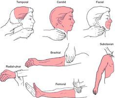 pressure points: a point of extreme sensitivity to pressure.