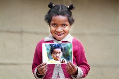 Anisa before and after surgery. A beautiful new smile to share with the world!