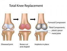 Knee Replacement and increasing your post operative success