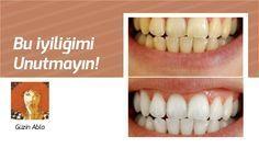 Dişlerinizi evinizde 2 dakikada beyazlatın Günümüzde beyaz dişlere sahip olmak en çok arzulanan şeyler arasında. Diş beyazlatabilmek için gereğinden fazla para ve zaman harcanıyor. Unutmamamız gere…