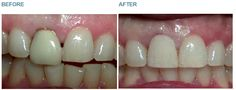 Dental Crowns - Case 1 A patient was unhappy with the appearance of previous dentistry and came to Dr Charlotte de Courcey-Bayley for options on how to improve their smile. BEFORE: Dr Charlotte first had to remove the previous crown that the patient was unsatisfied with. In order for the tooth to look more even in comparison with the adjacent front tooth the patient was referred to a gum specialist for a procedure called crown lengthening. AFTER: While the final crown was being made Dr…