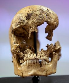 """Cannibalism in Jamestown: Colonists most likely ate the brain of a 14-year-old girl after she had died, probably of starvation during the winter of 1609-1610.  The colonists were badly prepared for winter conditions in the new world at Jamestown. Most starved or died of disease and cold.  Archaeologists announced today the """"first solid evidence"""" that some 17th-century American colonists consumed one another."""