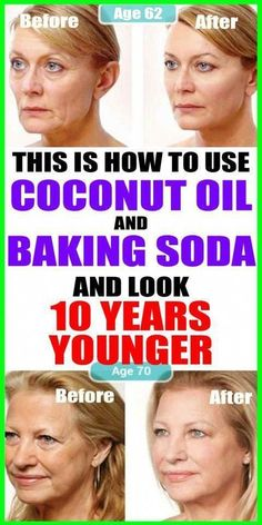 This Is How To Use Coconut Oil And Baking Soda To Look 10 Years Younger beauty 713187290976597727 Natural Face Cleanser, Natural Skin Care, Natural Health, Natural Facial, Facial Cleanser, Natural Cures, Anti Aging Skin Care, Baking Soda Face, Baking Soda Shampoo