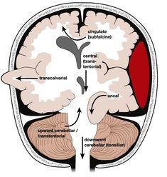 Brain Herniation — Types, Symptoms and Radiology Mri Brain, Brain Science, Medical Science, Life Science, Computer Science, Brain Anatomy, Human Anatomy And Physiology, Medical Anatomy, Grey's Anatomy
