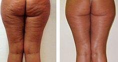 Éliminer de la cellulite n'est pas une mince affaire ! Inesthétique, elle résiste la plupart du temps aux séances de sport les plus intensives, aux diètes