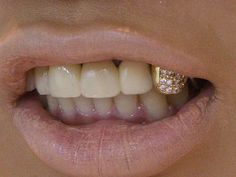 "i hate gold teeth but this cap i <3. . . it makes me feel like screaming that rihanna lyric ""suck my cockiness  lick my persuasion"""