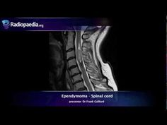 A quick review of spinal cord ependymoma MRI appearances.  Find out more: http://radiopaedia.org/articles/spinal-ependymoma
