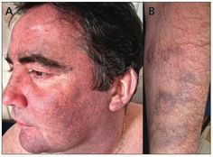 Hydroxychloroquine-related skin discoloration | Hydroxychloroquine-related hyperpigmentation on the face (A) and areas of previous bruising on the arm (B) of a 48-year-old man with systemic lupus erythematosus. First published February 22, 2016, doi: 10.1503/cmaj.150622 February 22, Arm, Image, Arms