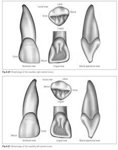 Maxillary incisors - Dental Technology: How-To, Tips Dental Surgery, Dental Implants, Dental Braces, Dental Assistant Study, Dental Bridge Cost, Dental Anatomy, Dental Technician, Dental Art, Dental Crowns