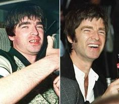 noel-g-teeth-before-and-after-400x350