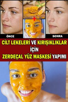 Turmeric Facial Mask For Skin Blemishes And Wrinkles - How To Make At Home . - in 2019 Turmeric Facial Mask For Skin Blemishes And Wrinkles - How To Make At Home . Turmeric Facial Mask, Facial Masks, Too Faced Concealer, Facial Exercises, Les Rides, Skin Mask, Sagging Skin, Homemade Skin Care, Face Care