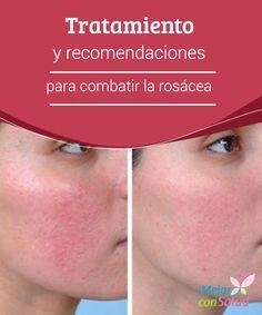 Tratamiento y recomendaciones para combatir la rosácea  Para mejorar los síntomas de la rosácea es fundamental que cuidemos de nuestra alimentación así como de nuestros hábitos de vida. Se recomienda hacer ejercicio, dormir bien y evitar el estrés