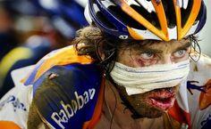 Tour de France 2011 - Hard mans sport - Laurens ten Dam after a bad crash still finished the Tour