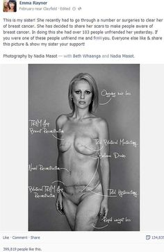 Beth shared her post cancer surgery body on Facebook to raise awareness of checking your body to prevent cancer, over 100 people befriended her for sharing her bare all pics. Get behind this lady and support her and show those horrible people that they are not worthy friends and she doesn't need them.