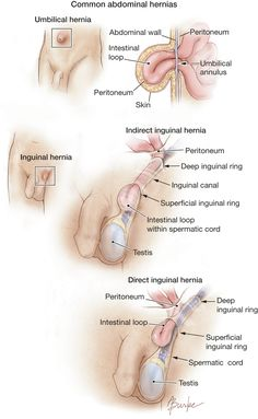 A hernia develops when a weakness that forms in the abdominal wall enables part of the intestine (bowel) or another organ to protrude through it. Among the most common are umbilical hernias that occur at the navel and inguinal hernias that are seen in the groin area. There are 2 types of inguinal...