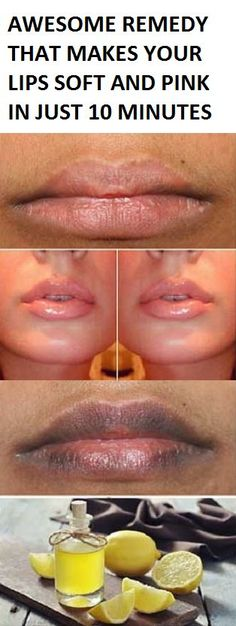 AWESOME REMEDY THAT MAKES YOUR LIPS SOFT AND PINK IN JUST 10 MINUTES