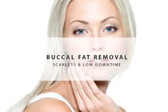 Buccal fat removal refers to cheek reduction procedure. Buccal fats are the pad of fats that shapes the bottom part of the cheeks. These chubby cheeks are mostly caused by overweight or by genetics predisposition. By removing these fats, the cheeks are reduced. For more info, click on the link below. Call at +65 96416744 to book an appointment. We are available in Whatsapp too, add us! #buccalfatremoval#plasticsurgerysingapore#drshens#shensclinic#bloggersg#chubbycheek#buccalfat