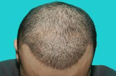Hair Transplantation in Turkey - Affordable Cost with Best Hair Transplant Clinics