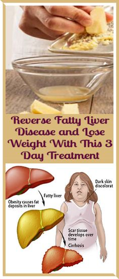 Reverse Fatty Liver Disease and Lose Weight With This 3 Day Treatment