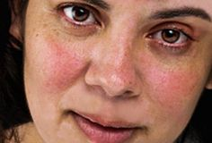 5 Holistic Steps to Take NOW if You Have Rosacea