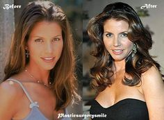 Charisma Carpenter Plastic Surgery Before And After #CharismaCarpenter #beforeandafter