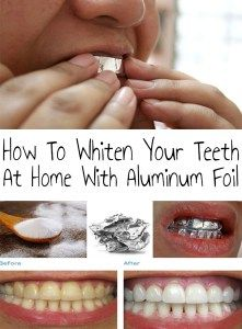 Home teeth whitening helps you a lot when you urgently need to get a beautiful smile. How To Whiten Your Teeth At Home With Aluminum Foil! (Bicarbonato de sódio, papel alumínio e dentifrício) Teeth Whitening Methods, Charcoal Teeth Whitening, Natural Teeth Whitening, Beauty Care, Diy Beauty, Beauty Hacks, Just In Case, Just For You, Fit Bodies