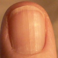This is a fingernail, Obviously. What is equally visible but not as obvious is that the person has health issues. If you know what to look for, you can see B12 deficiency nails. No moons on fingern…